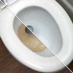 известковый налет в унитазе как очистить
